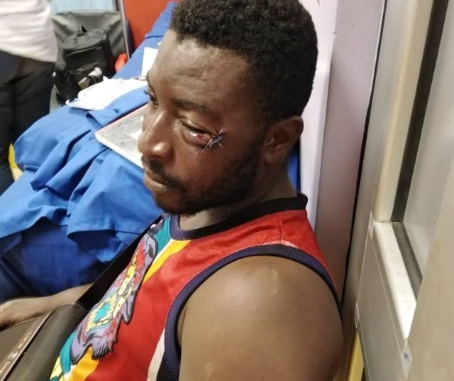 Mr. Siaw, the fan who was assaulted by Patrick Allotey